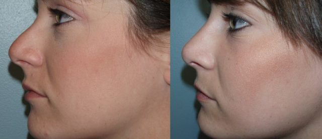 Пластика носа гиалуроновой кислотой