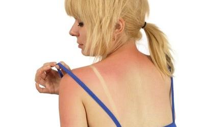 Что делать, если обгорела на солнце - быстрая инструкция