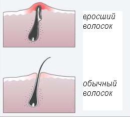 Лечение и удаление вросших волос