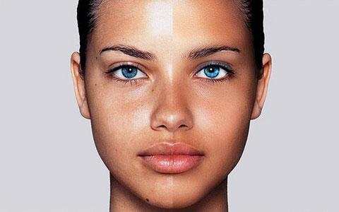 Причины жирной кожи лица и тела