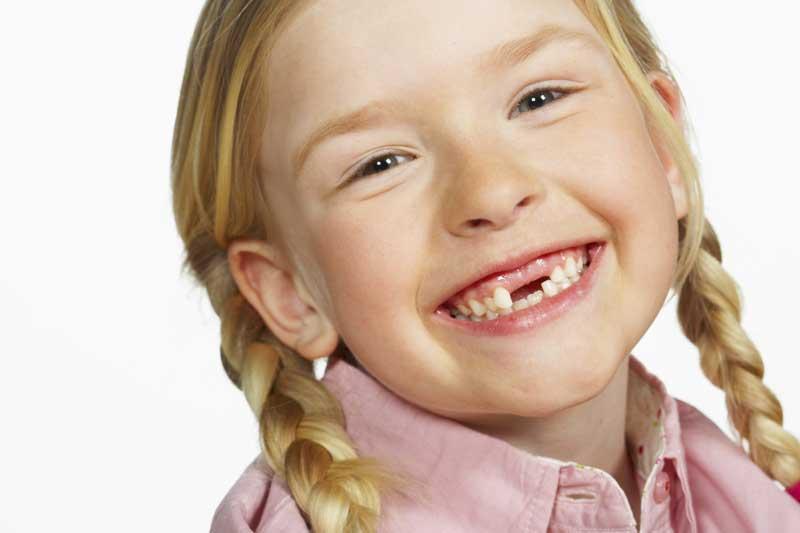 Как и где удалить молочный зуб у ребенка если он шатается?