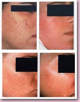 Лицо после салицилового пилинга - фото до и после