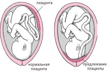 Нормальное и неправильное положение плаценты в матке
