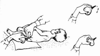 Клизма новорожденному ребенку