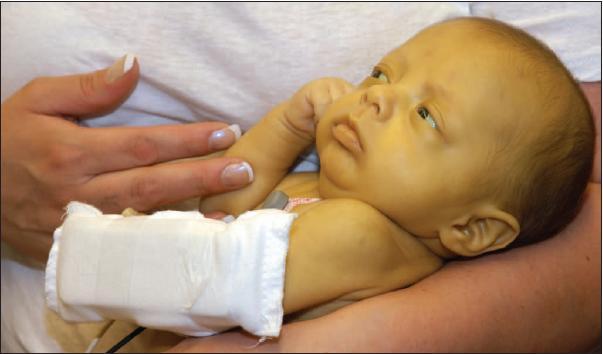 Желтуха новорожденных - причины, симптомы