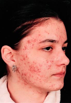 Причины жирной кожи лица и тела - влияние медикаментов