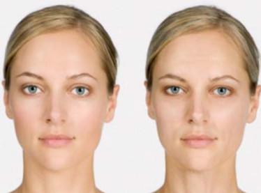 Усталый тип старения кожи лица
