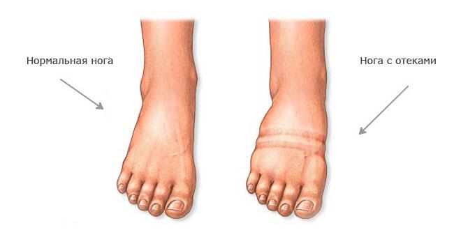 Отеки ног у беременной - признаки и симптомы