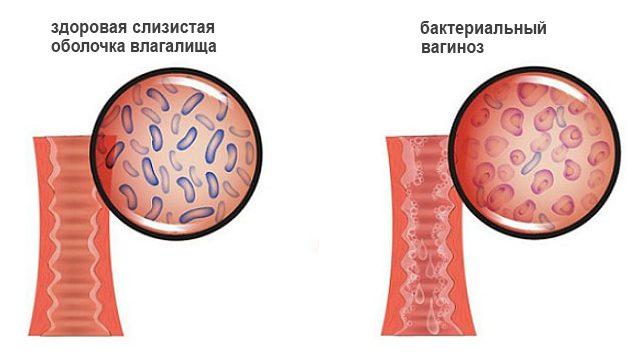 Бактериальный вагиноз во время беременности