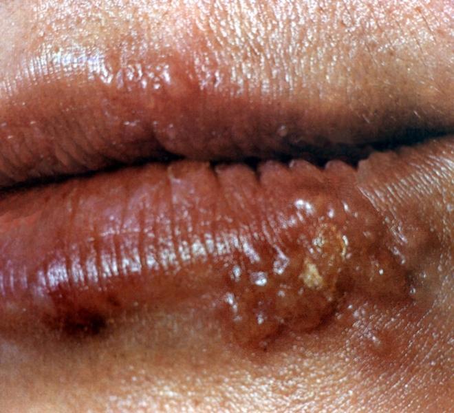 Опасность вируса герпеса для мужчин и женщин
