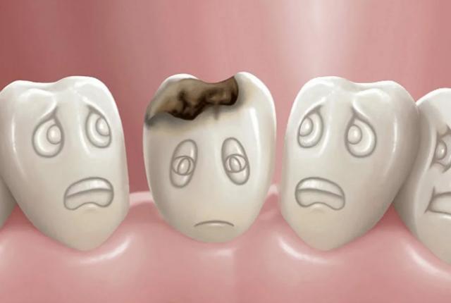 Боль в зубах вызвана кариесом