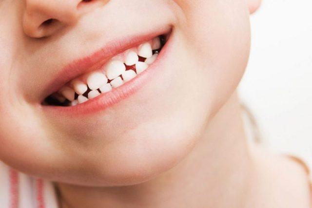 Зубной налет у детей - чем он опасен?